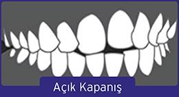 acik-kapanis-1