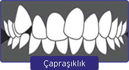 carpasiklik-1