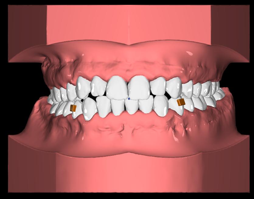 orthero-plak-seffaf-dis-teli-simulasyon
